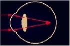 eye conditions myopia (short sightnedness) pics