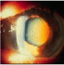 eye disease cataracts pics