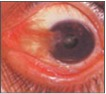 Eye diseases pterygium picture
